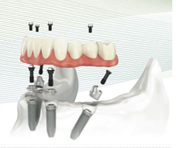 images all 4 implants