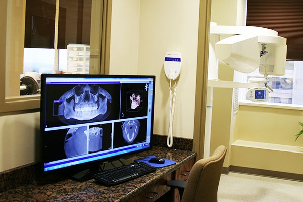 CT-Guided Dental Implants: Advanced Technology for Better Results