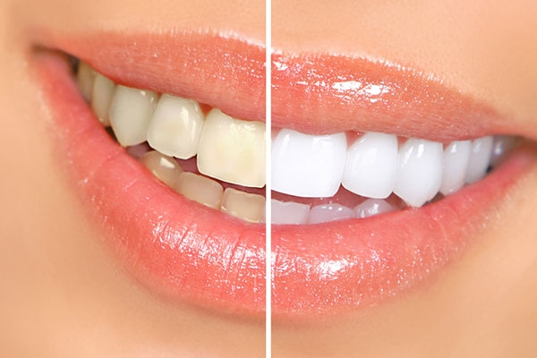 Brighten Your Smile with Zoom Teeth Whitening