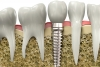 The Super Power of Dental Implants