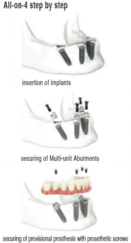 All-on-Four dental implant process