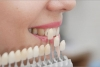 Fix Your Smile In No Time With Porcelain Veneers